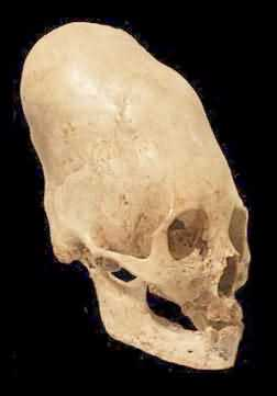 Unusual Paracas skull supposedly deformed by binding the growing head    Elongated Skulls Africa
